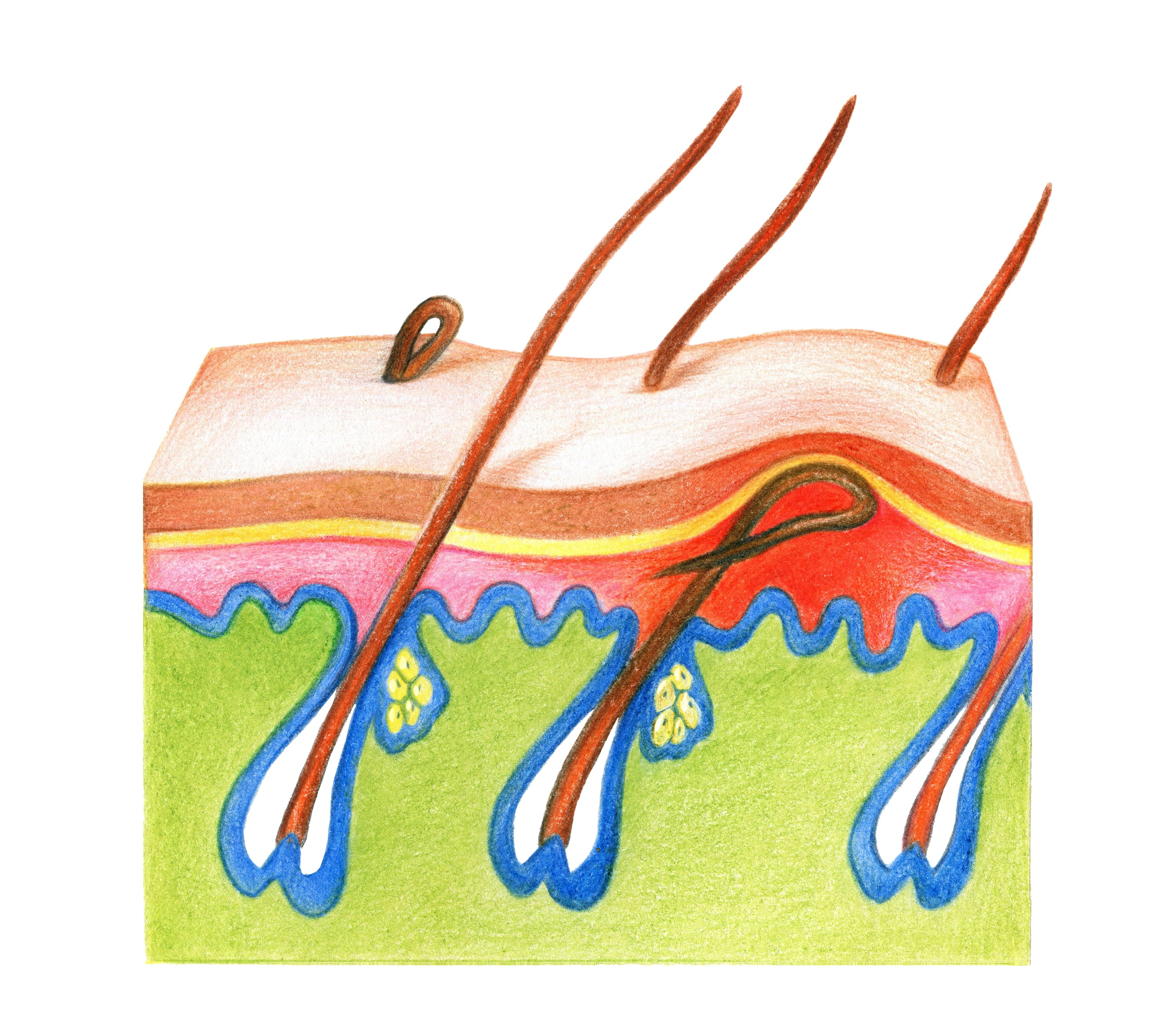 Illustration of an ingrown hair
